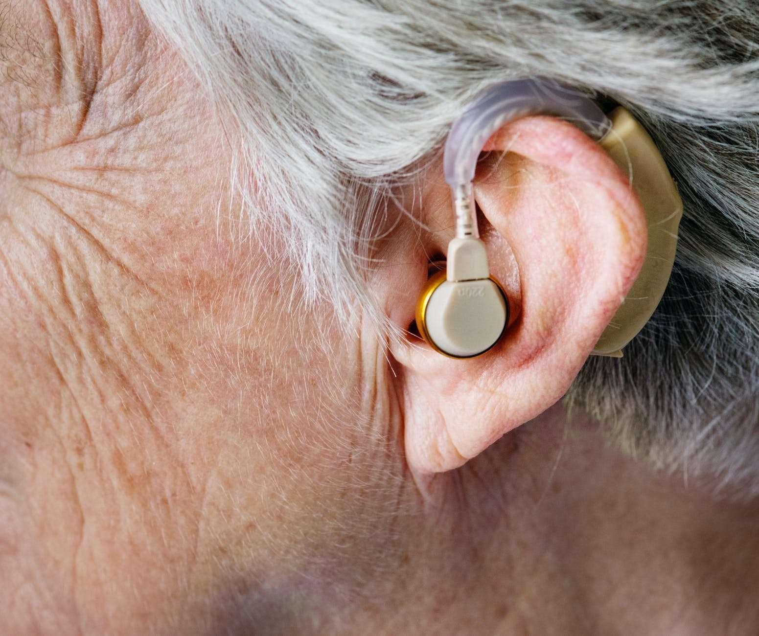 BEST TREATMENT IN HEARING LOSS IN SHARJAH SENSORINEURAL HEARING LOSS