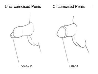 Circumcision Surgery Explained
